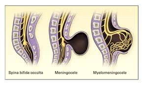 spina bifida - occulta