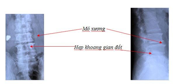tai-sao-can-chup-x-quang-dot-song